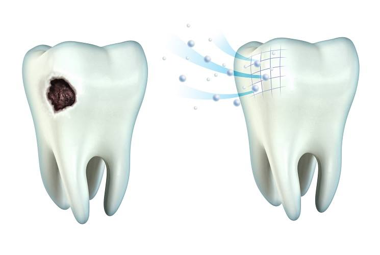 clinica-dental-barcelona-caries