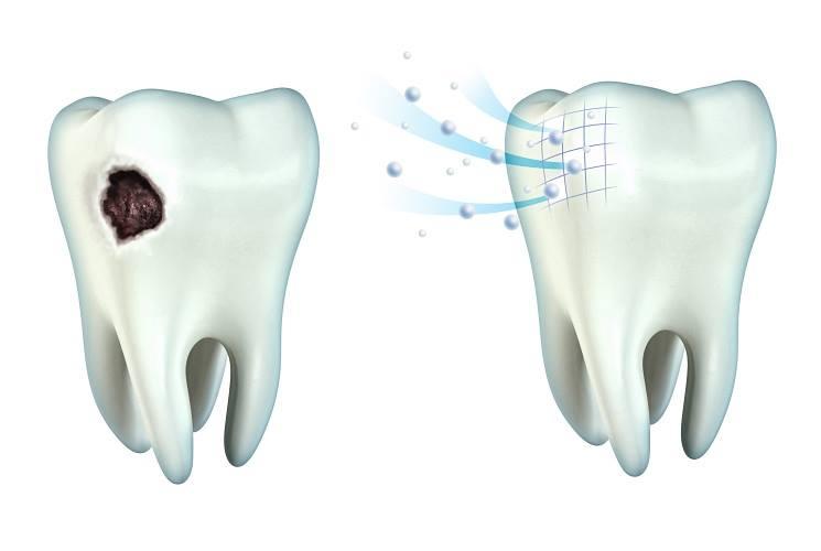 clinica-dental-barcelona-caries