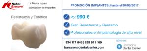 implantes-dentales-barcelona-nobel-biocare