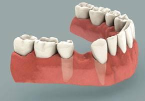 migraciones de dientes