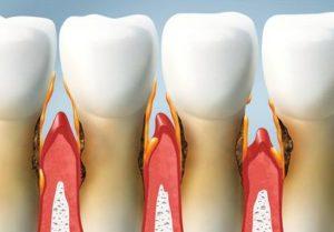 gingivitis barcelona