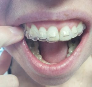 clinica dental invisalign en barcelona