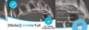 invisalign-braces-transparents-promocio-barcelona-17jun19