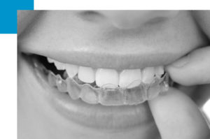 alineadores-dentales-invisalign-transparentes-barcelona